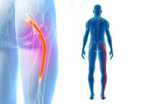 sciatica-stretches-top